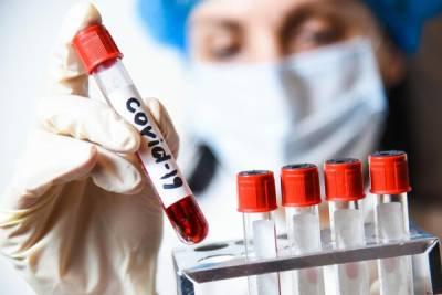 Где сдать экспресс-тест на коронавирус на Кипре 7 мая?