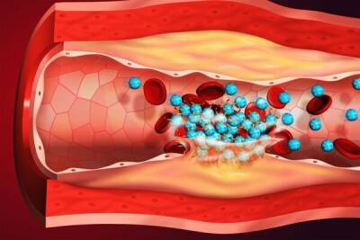 У 20-30 процентов переболевших коронавирусом могут возникать тромбозы